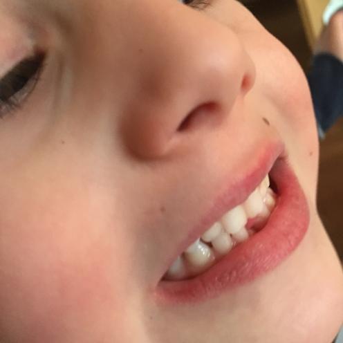 Zahnllücke I