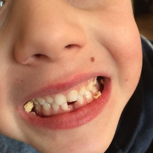 Zahnlücke II